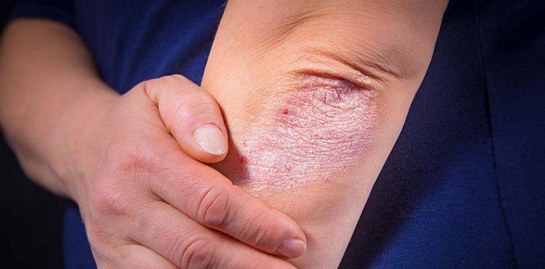 An individual has a rash on their elbow.