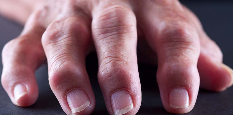 Rheumatoid nodules on a person's hand.